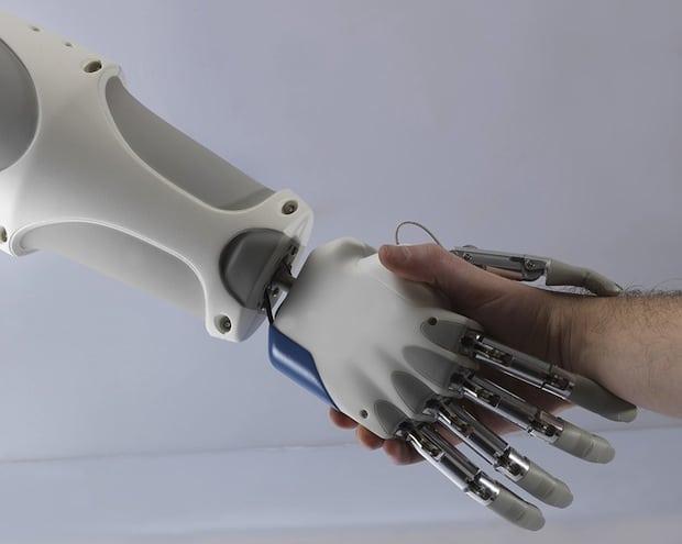 bionická ruka