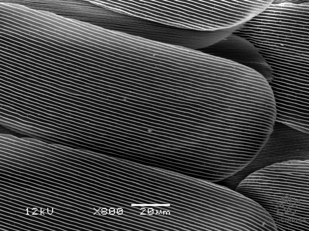 Elektronová mikroskopie 02