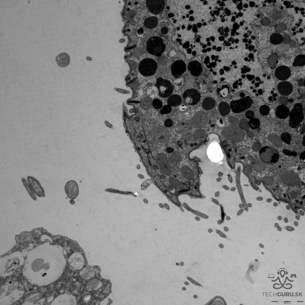 Elektronová mikroskopie 01